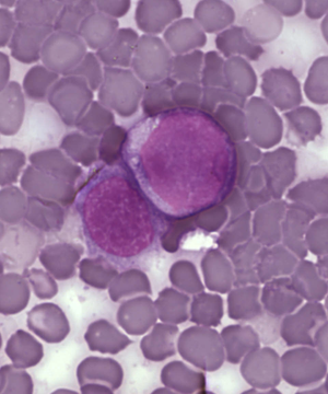 Leukemia cells.